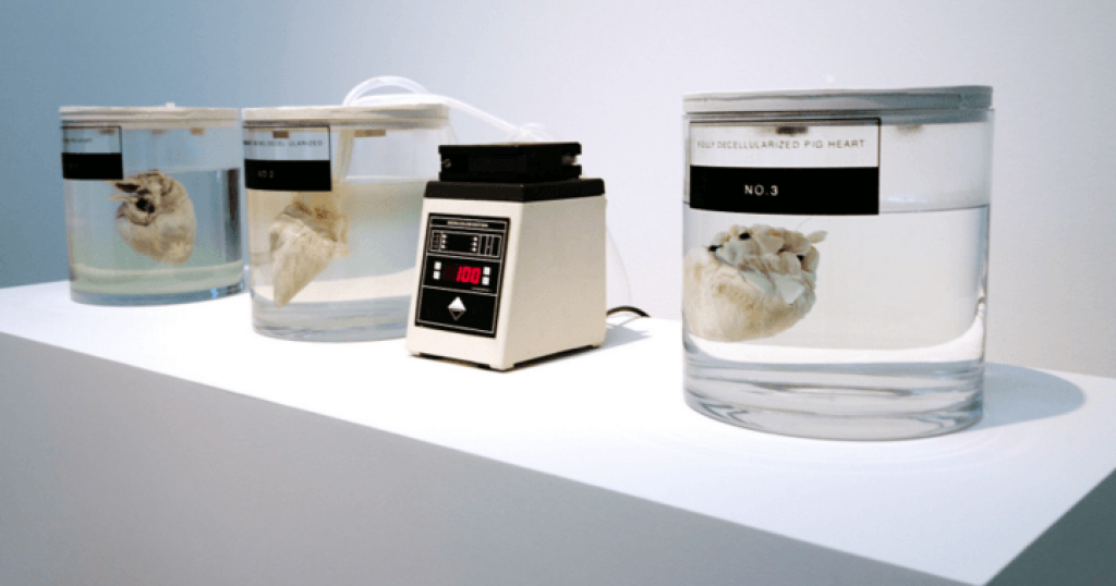 Can organs be objects of design?